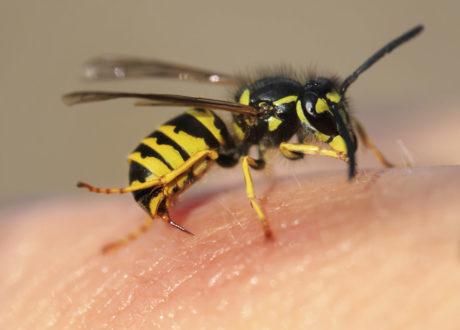 Wespe Wespenstich Mensch